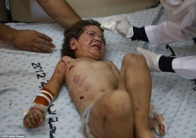 wounded child